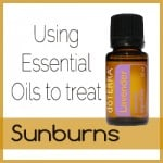 doterra button - sunburns